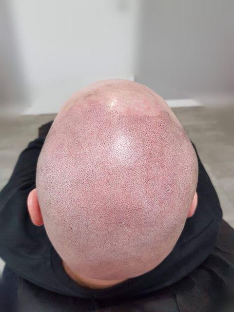 klient w trakcie zabiegu   - mikropigmentacja skóry głowy