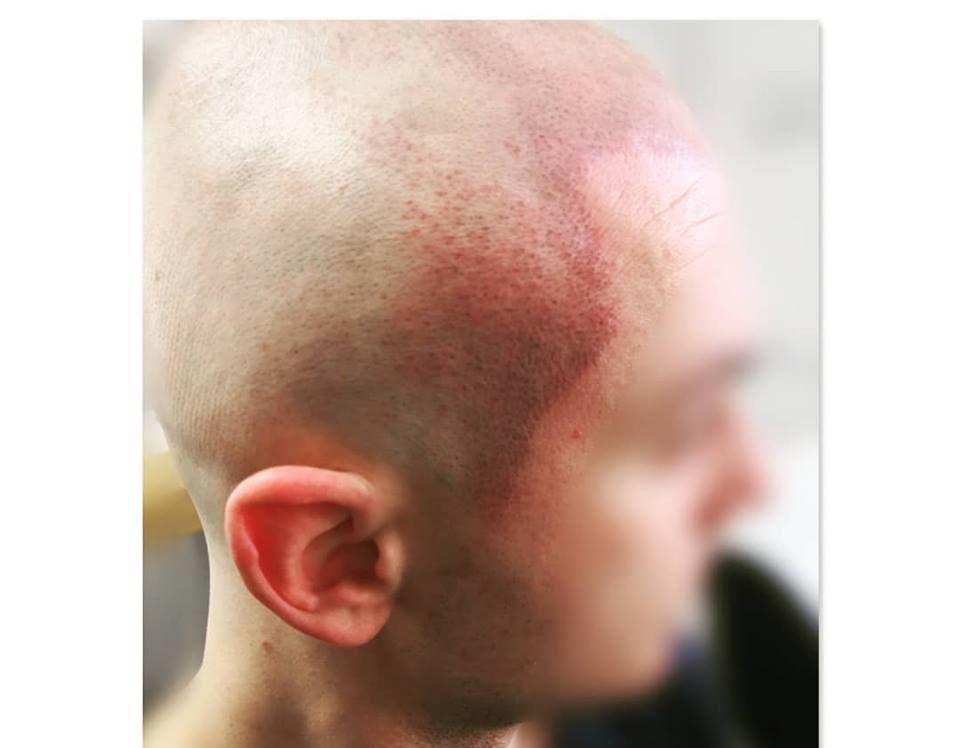 klient po zabiegu mikropigmentacji skóry głowy