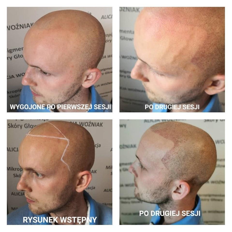 druga sesja mikropigmentacji skóry głowy