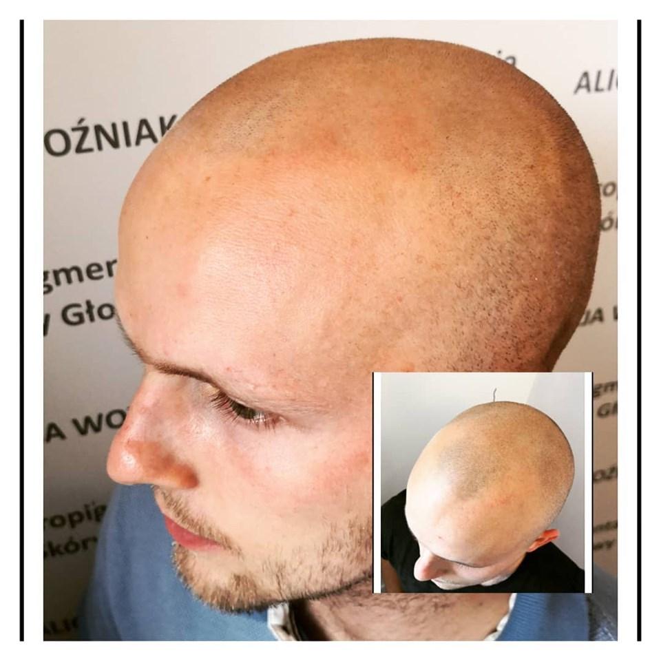 Pierwsza sesja mikropigmentacja skóry głowy