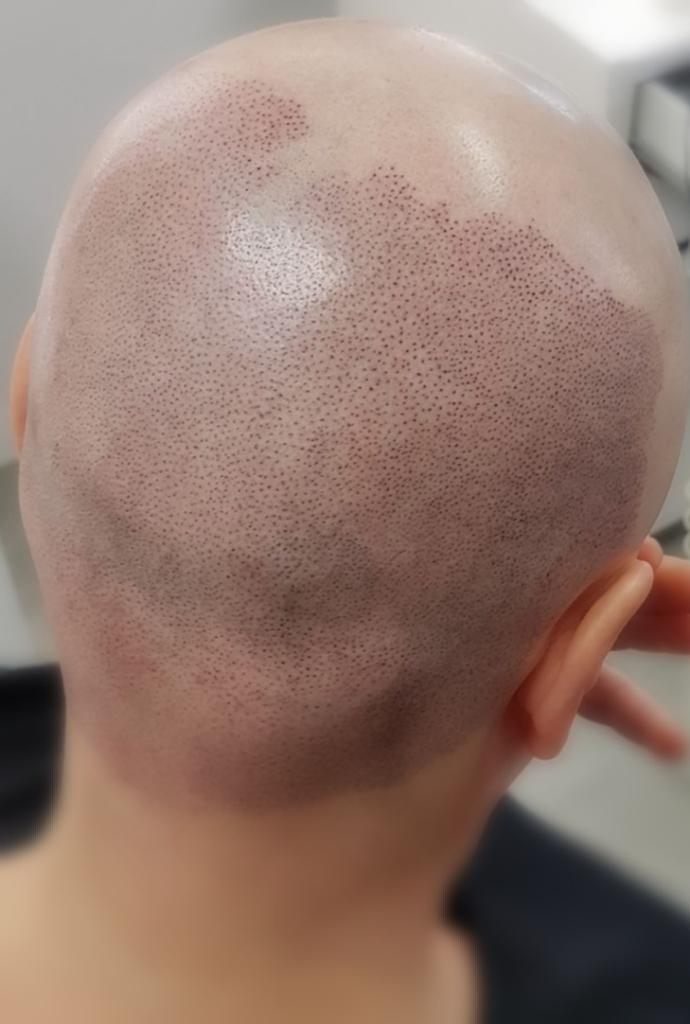 łysienie plackowate  mikropigmentacja skóry głowy